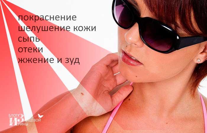 Аллергия на ультрафиолет фото