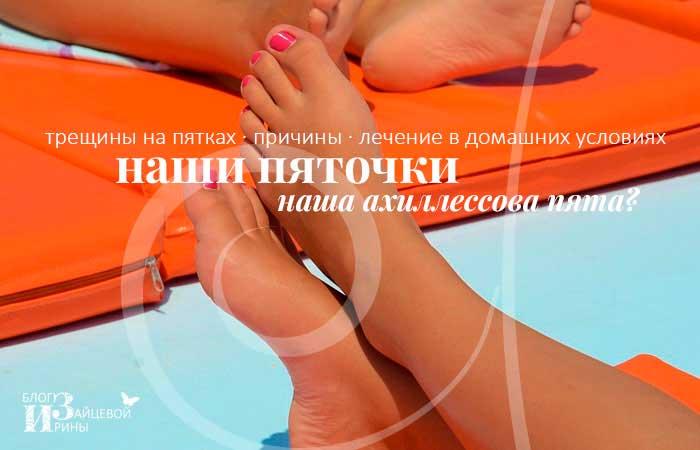 /berezhem-nashi-pyatochki.html