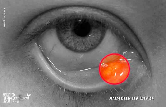 ячмень на глазу фото 2